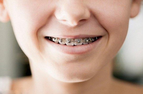 Chụp X quang răng được chỉ định trong trường hợp nào? - ảnh 1