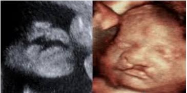 Phòng ngừa thiếu dinh dưỡng trong thai kỳ - ảnh 1