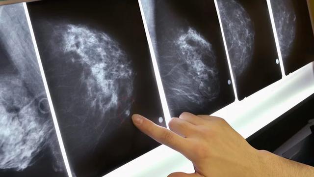 Hiểu đúng về Nguy cơ ung thư - ảnh 3
