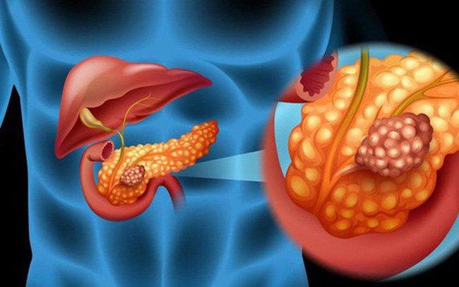 Các yếu tố nguy cơ của ung thư tụy - ảnh 1