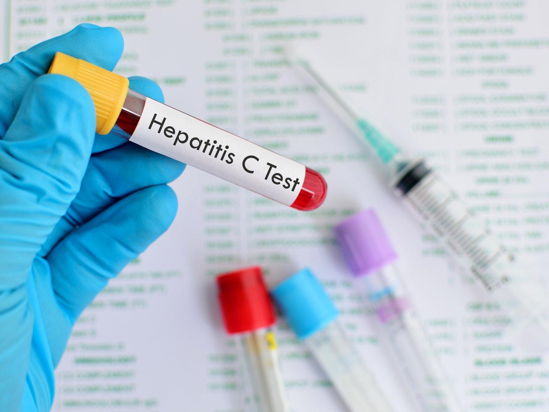 Dấu hiệu nhận biết viêm gan C - ảnh 2