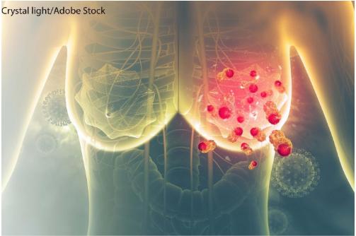 Nguy cơ tiến triển và tử vong của ung thư - ảnh 2