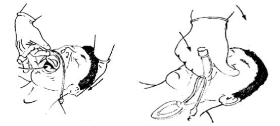 Gây mê mask thanh quản phẫu thuật nội soi xẻ sa lồi lỗ niệu quản - ảnh 2