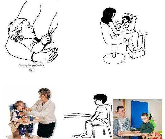 Rối loạn nuốt ở trẻ bại não - ảnh 2