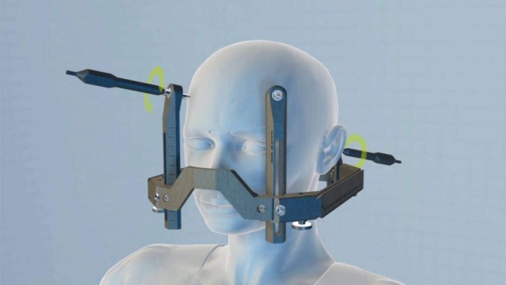 Xạ phẫu SRS trong điều trị sang thương hệ thần kinh trung ương - ảnh 2