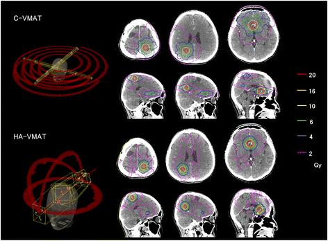 Xạ phẫu SRS trong điều trị sang thương hệ thần kinh trung ương - ảnh 5